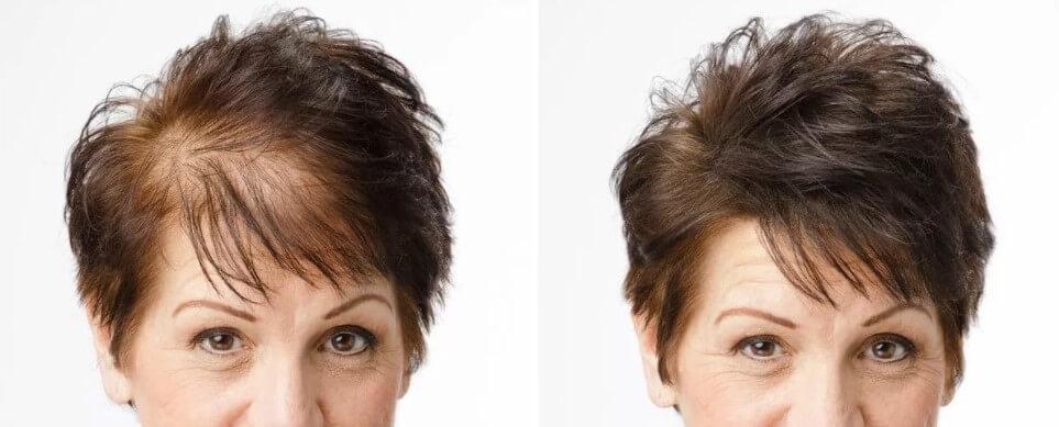 Photo of foods help hair growth