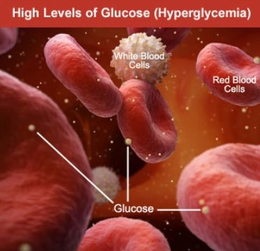 What are symptoms for high blood sugar